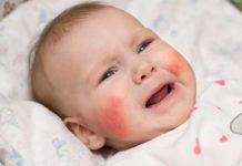 Alergia skórna u niemowląt – jak postępować?